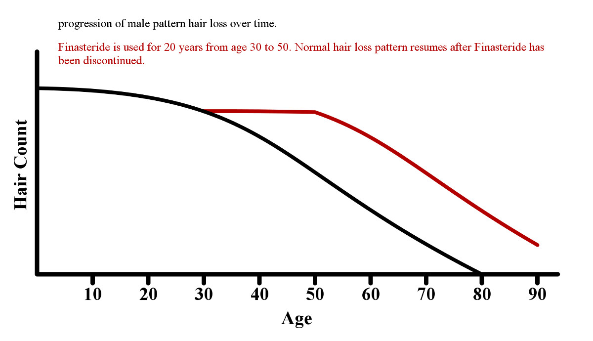 Preventing & reversing male pattern baldness | Baldness cause & cure